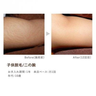症例写真 二の腕.jpeg